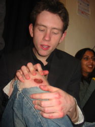 Chris Shows off his Footy Wound