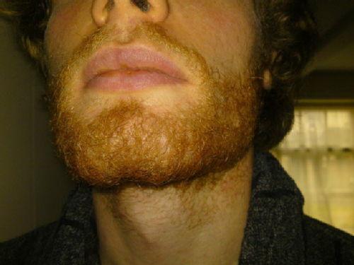 May beard